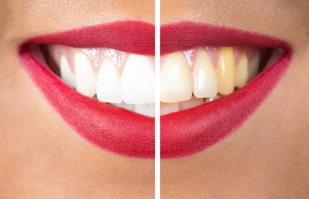 P&G resolves clash over whitening strip patents